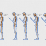 "Oh crap! RT @washingtonpost: ""Text neck"" is becoming an ""epidemic"" and could wreck your spine http://t.co/wZuAupmz2T http://t.co/Ym2LXI8Wqf"