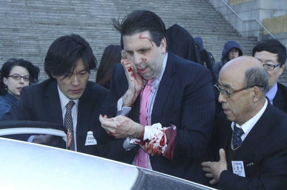 Embajador de EE.UU en Corea del Sur sufrió una puñalada en la cara por activista