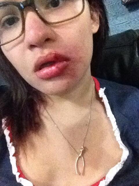 """Me golpeo un GNB al intentar ayudar un muchacho que querían llevarse  #22F Insulza @OEA_oficial  http://t.co/YO7M86C89C vía @Beccasays12"""""""