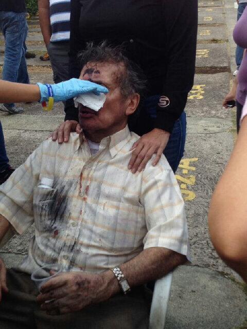 "Tupamaro  Golpeó a un Sr. mayor por las Acacias #Táchira 5:44pm #24F #ResistenciaVzla http://t.co/dLyBtG172a"" @OEA_oficial"