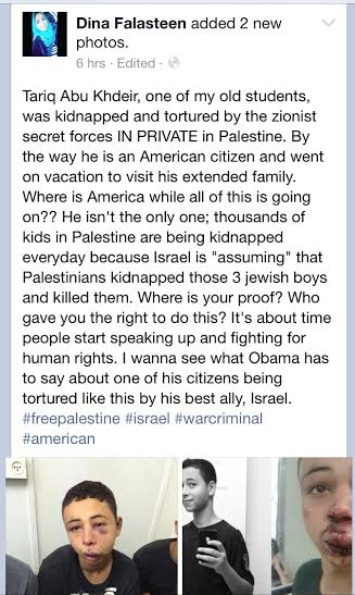 Subhan'Allah! This is absolutely brutal. May Allah protect our brothers/sisters. Plz RT! #FreePalestine http://t.co/y7DjsBl2ns