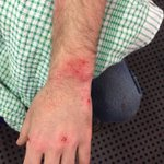 Post protest: another student injured by horses #PMVisit #AbbottFence http://t.co/QHFt9ldsoa