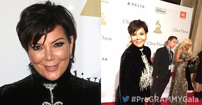 People were saying awful, awful things about Kris Jenner's face at the Grammys...