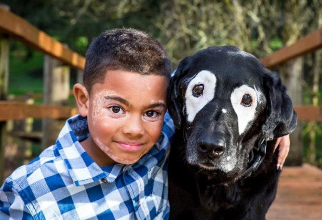 Menino e cachorro com vitiligo se encontram e ficam amigos: 'o resto é sem graça' https://t.co/NlGOzLTZ19