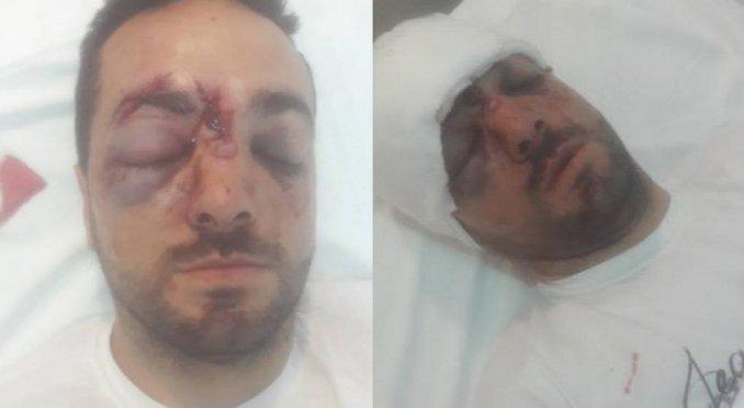 Violento robo en #Córdoba: lo golpearon con un palo en la cabeza para robarle la moto  https://t.co/MeEvnZloFw