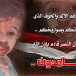 شعب هؤلاء هم اطفاله .. من المستحيل أن يهزم بإذن الله .... صاااااامدووون #اليمن_فتاكه #اليمن_مقبرة_الغزاة http://t.co/WNrK5y0Ntv