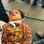لن ننسى وسوف نقتص. قال تعالى : ولكم في القصاص حياة. صدق الله العظيم رب العرش العظيم #اليمن_غالي #اليمن #Children https://t.co/4VIOKhbxcG