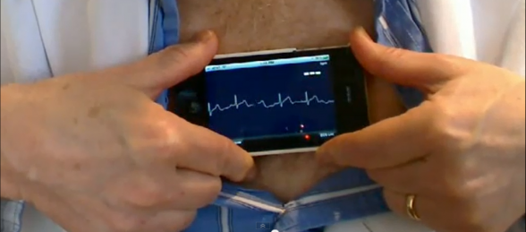 .@AliveCor gets into remote patient monitoring with LifeWatch deal https://t.co/w6TEtHhpKC #digitalhealth https://t.co/ysfQKrUbus