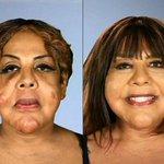 #Mujer Vivió 10 años con cemento y sellador para neumáticos en la cara!!! https://t.co/HE2Edt9QIc https://t.co/NYDhsxAFYu