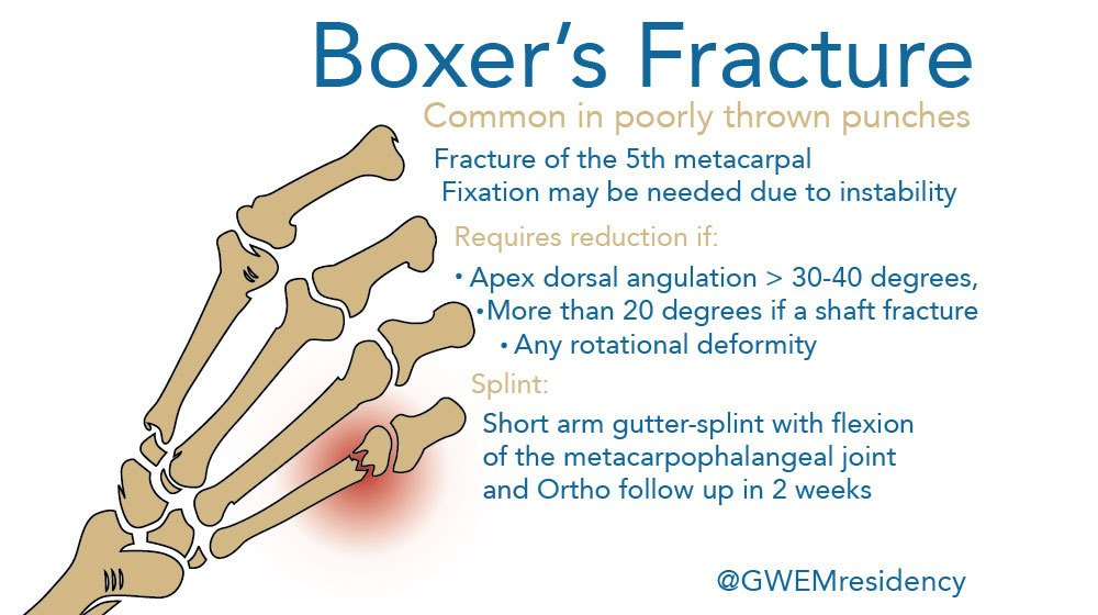 Hope everyone has a great weekend, for those working here's some #BoxersFracture basics #FOAMed #ortho https://t.co/cRRyDFWESA