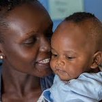 Hope to parents with children with a cleft lip: Your Health