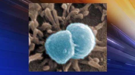 Oregon 2nd-grader diagnosed with meningococcal meningitis