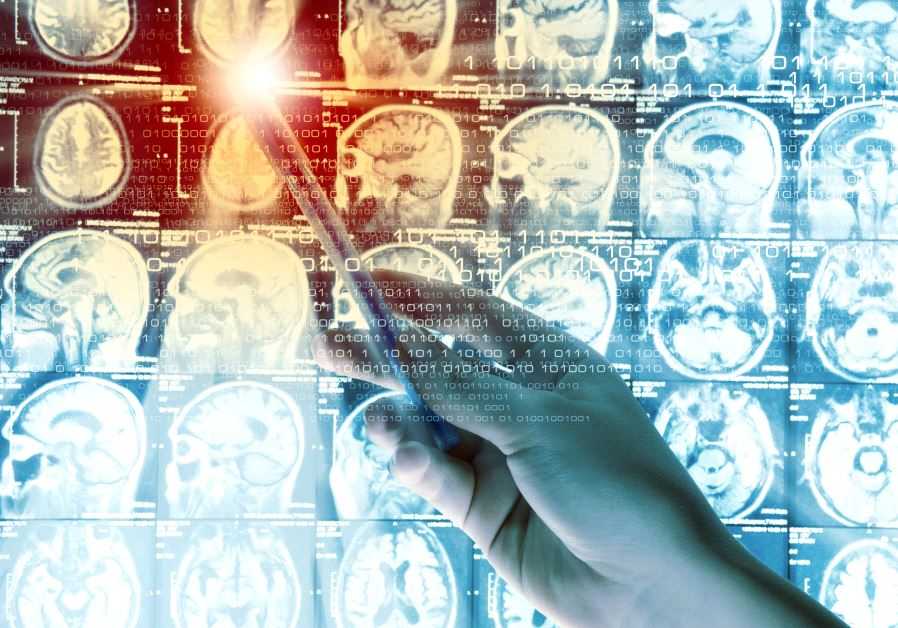 Health Scan: Brain waves may predict and prevent post-injury epilepsy
