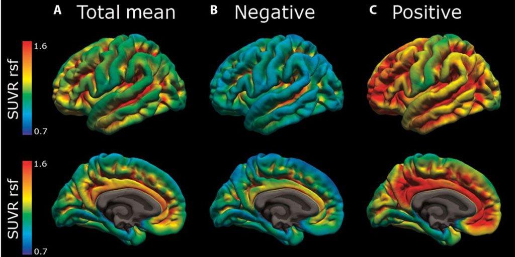 test Twitter Media - Dormir mal es un signo precoz de la enfermedad de Alzheimer y a través del monitoreo del sueño se podría detectar antes la enfermedad, según un reciente estudio. #AESTEinforma vía @GeriatricArea 📣 https://t.co/oO0Zwkxnp5 #Alzheimer https://t.co/mxCVfRDkC5