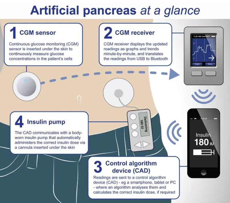 test Twitter Media - There's a workshop for people with #type1 #diabetes on building your own artificial pancreas system.  WE CAN DO THAT? 😮  https://t.co/zc1wI5RtK2 https://t.co/tbCOs7I74k