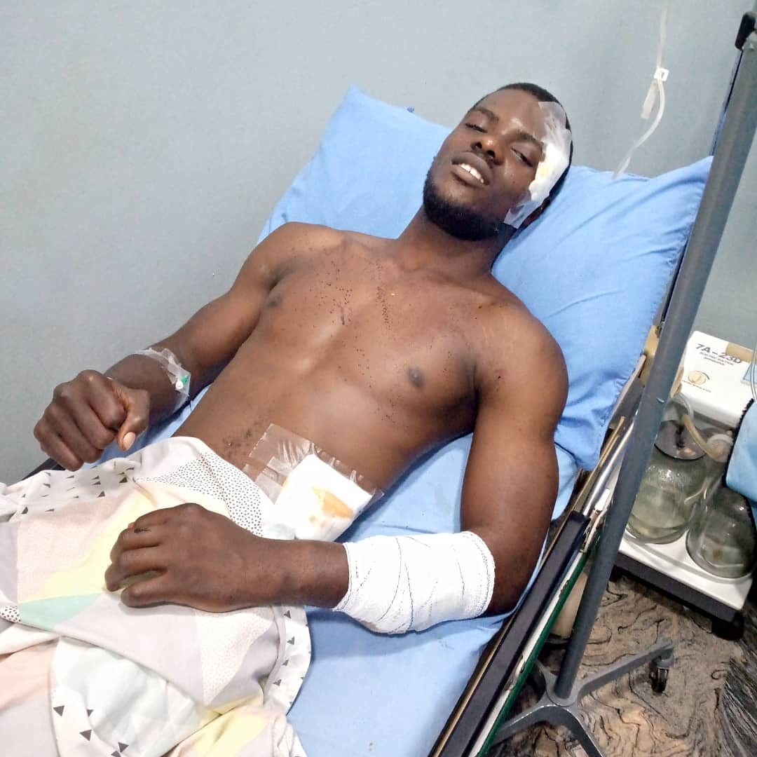 ⁣One of our own in the community needs our help urgently. ⁣ Let's help AY . He needs an immediate operation  his tendons got split He needs 600k for this operation.  Lets do this.⁣ Please you can donate to ⁣ 0165283884⁣ Adebayo Ayowonuola ⁣ GTBANK⁣ ⁣ Let's save him