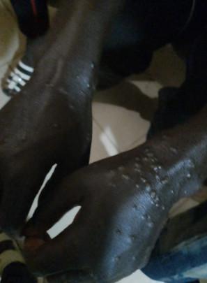 コロナ 天然痘 天然痘やっぱ セネガル エグに関連した画像-02